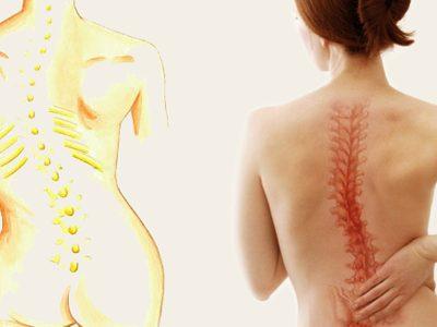 escoliosis-y-fisioterapia